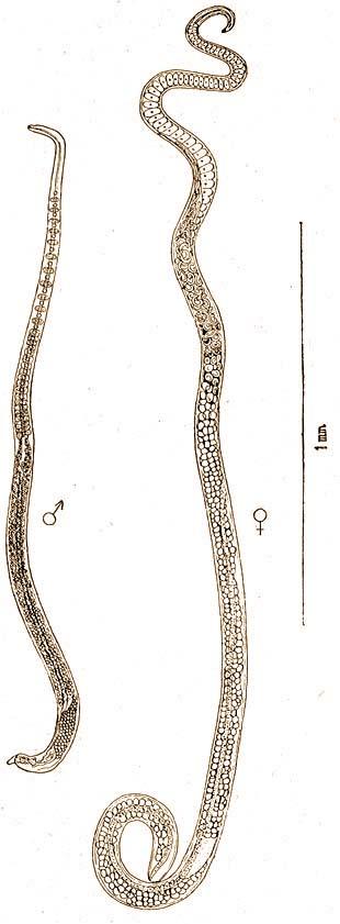 A pinworms kerekféreg
