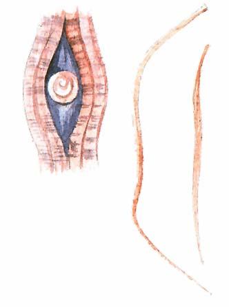 fonálféreg parazita vagy sem)